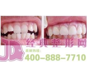 成都唐牙科牙齿美容案例
