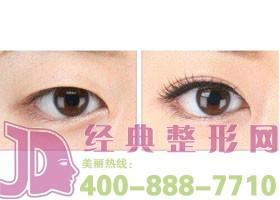 成都美熹国际双眼皮案例