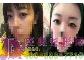 成都温江江华美祛眼袋案例