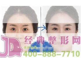 成都金堂县第一人民祛眼袋案例