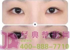 成都金堂县第一人民双眼皮案例