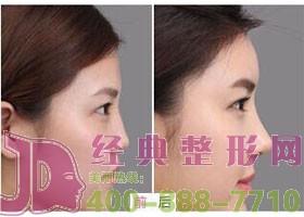 成都金堂县第一人民医院隆鼻案例