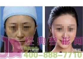 成都金堂县第一人民激光祛斑案例
