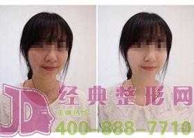 成都金堂县第一人民彩光嫩肤案例