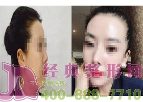 成都精美源隆鼻手术案例