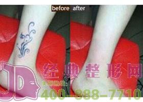 四川石油管理局总医院激光祛纹身案例