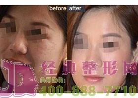 四川石油管理局总医院激光祛雀斑案例