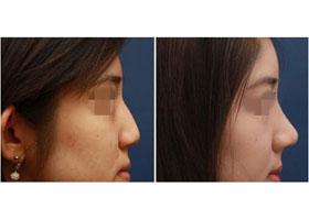 成都臻爱唯美3D多维定制隆鼻案例