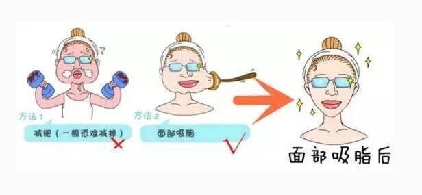 汕头爱丽诺面部吸脂塑形多久能见效?