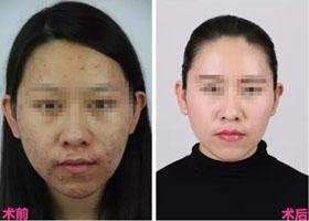 中国医科大学航空总医院激光祛痘案例