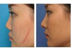 中国医科大学航空总医院疤痕激光治疗案例