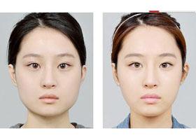 兰州皙妍丽瘦脸针案例