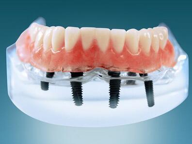 如果牙齿没有牙根了,那还能种植牙?