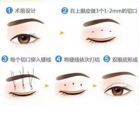 合肥并不是创伤越小的双眼皮手术方法就越好