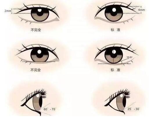 合肥双眼皮手术后如何度过难熬的恢复时期?这几点很重要
