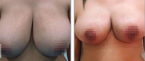 巨乳带给患者很大的烦恼