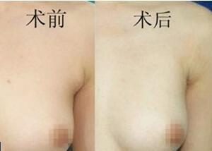 双侧腋下副乳危害