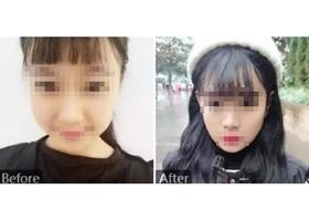 西安绿港瘦脸针案例