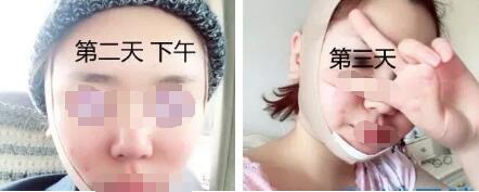 面部脂肪多主要是控制不住美食诱惑