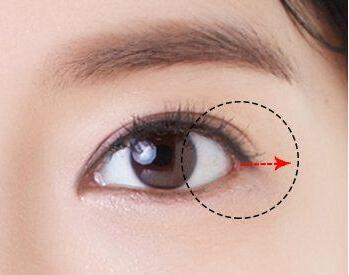 开眼角手术时间恢复与4大因素有关