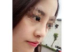 隆鼻术后回忆一下术前术后的对比图