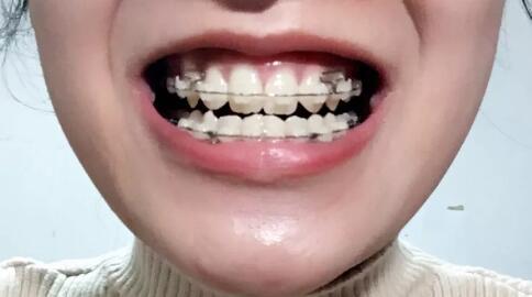 经过2年时间的牙齿矫正