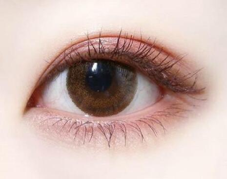 女孩子通过双眼皮手术锐变的过程图片