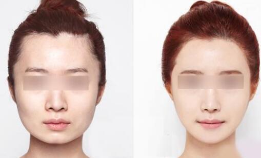 盘点当前流行的3种瘦脸方法