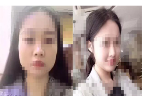 成都中西医结合瘦脸针案例