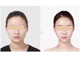 柳州医伊瘦脸针案例