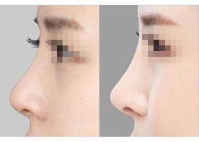 柳州医伊隆鼻术案例