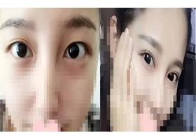 重庆伊恒妍双眼皮手术案例