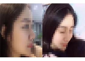重庆伊恒妍隆鼻手术案例