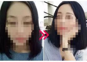 重庆伊恒妍纹眉案例