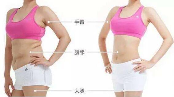 微胖体型可不可以做全身吸脂手术
