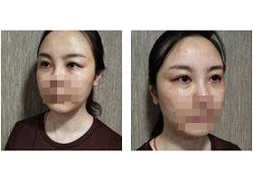 柳州医伊电波拉皮案例