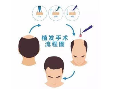 拯救脱发方法盘点