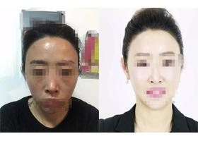 武汉思美妍面部年轻化案例