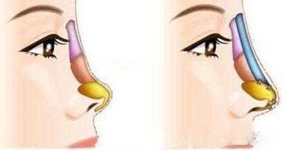 怎么知道自己的鼻子要不要矫正?