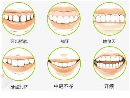 孩子做牙齿矫正会影响饮食吗?
