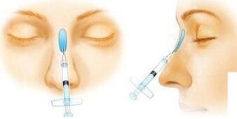 怎么知道自己的鼻子适合做哪种隆鼻方法