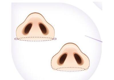 鼻子偏宽的可以试试这种方法