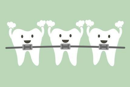 在矫正牙齿期间怎么护理牙齿