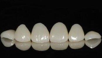怎样科学有效的美白牙齿