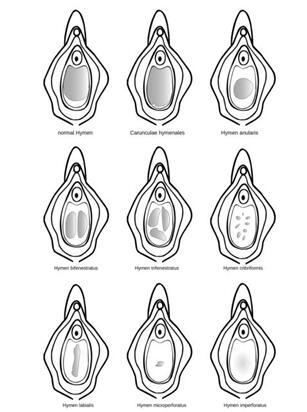 处女膜修复安全方法