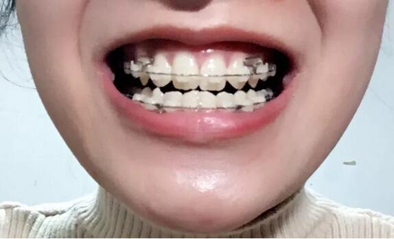 江门梦想牙齿矫正案例