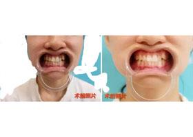 江门梦想牙齿美白案例