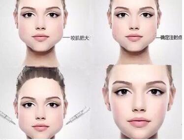 这些瘦脸的方法