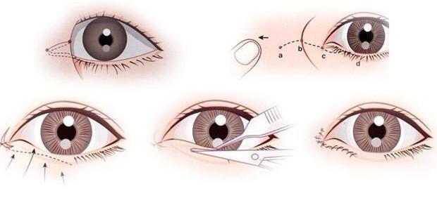 开内眼角手术一个月内恢复自然