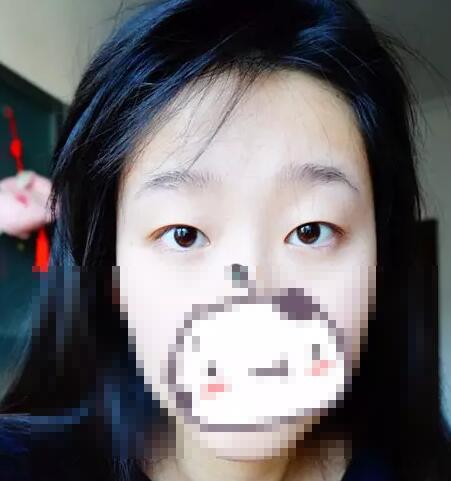 江门梦想双眼皮案例
